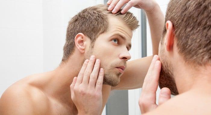 seborrea e caduta dei capelli