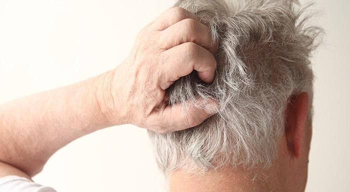 dermatite seborroica caduta capelli