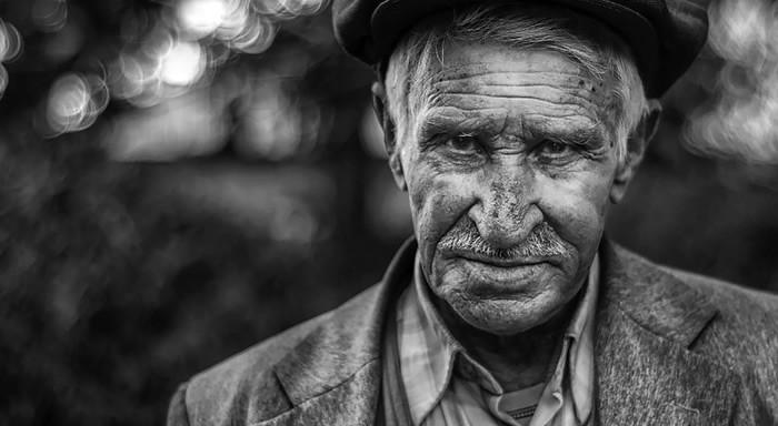 prurito anziani
