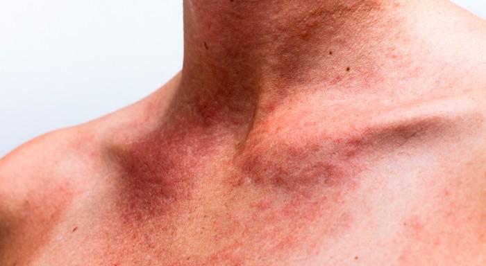 seborrea e dermatite seborroica