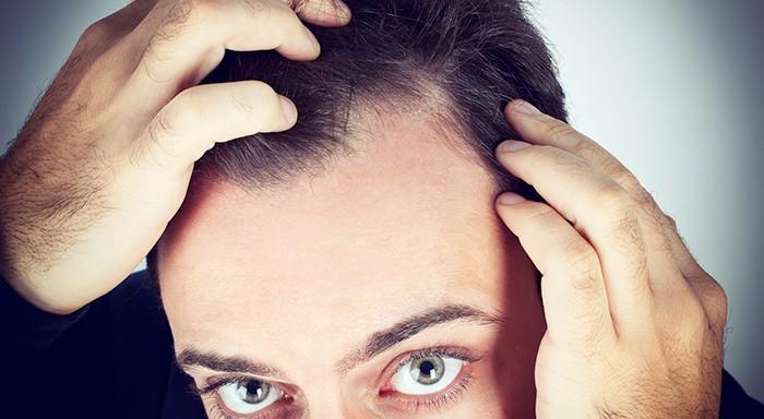 dermatite seborroica e caduta dei capelli